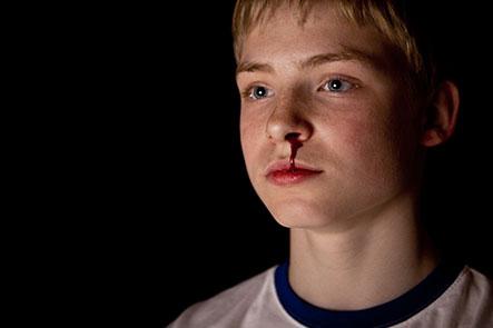 juvenile injuries image